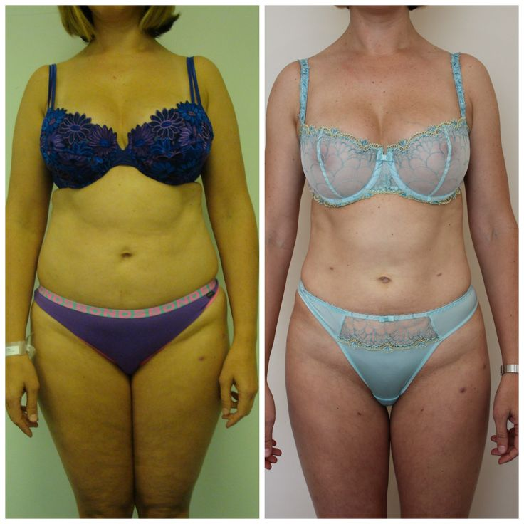 Dr Rastogi's patient, 40 year old mother of one  had Liposculpture abdomen, waist, hips, inner and outer thighs, mid back and arms. Contact us today to see how we can help you achieve your body goals Ph: 02 9362 1426  https://www.rastogi.com.au/liposculpture/
