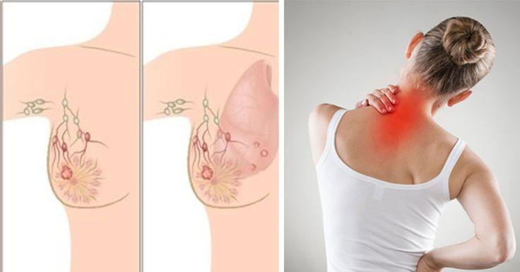 5 señales de advertencia del cáncer de mama que muchas mujeres ignoran #salud