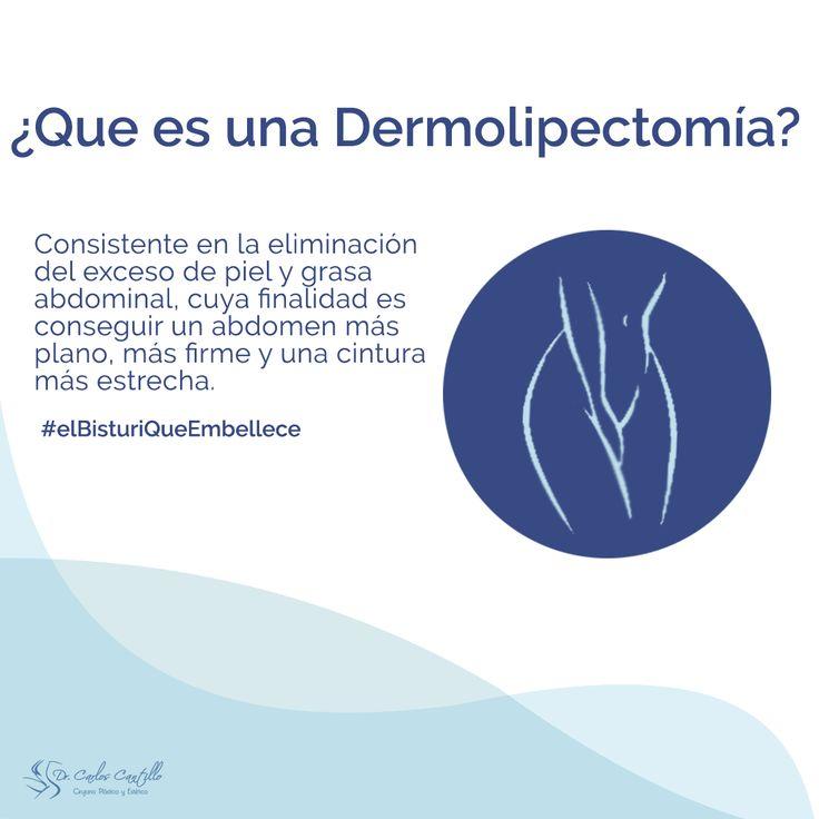 La dermolipectomia consistente en la eliminación del exceso de piel y grasa  abdominal, cuya finalidad es conseguir un abdomen más plano, más firme y una cintura  más estrecha..#elbisturiqueembellece #mamoplastia #mamoplasty #pexia #cirugiaplastica #cirujano #abdominoplastia #abdominoplasty #dermolipectomia #lipo #lipoescultura #gluteoplastia #gluteoplasty #gluteoplastiadeaumento #aumentodegluteos #aumentodesenos #aumentodemamas #blefaroplastia #otoplastia #rinoplastia #liftingfacial