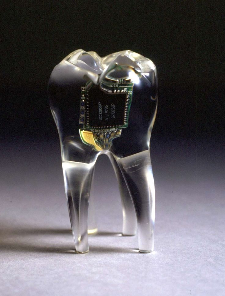 """The Audio Tooth Implant is a radical new concept in personal communication. A miniature audio output device and receiver are implanted into the tooth during routine dental surgery. These offer a form of electronic telepathy as the sound information resonates directly into the consciousness."""