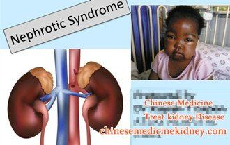 Why Nephrotic Syndrome Is Easy To Repeated, No Wonder You Go To Dialysis