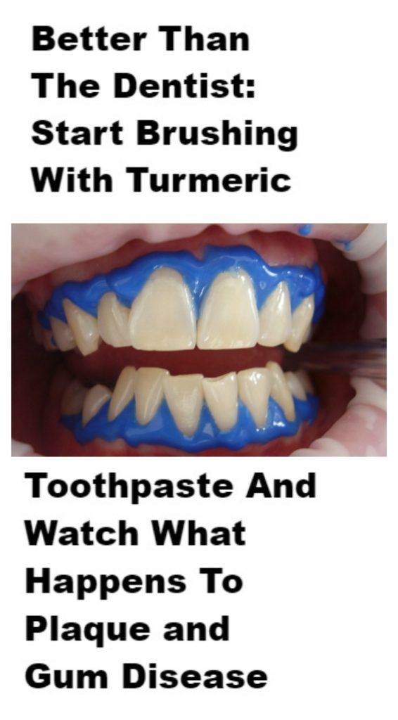 brush your teeth with turmeric http://getfreecharcoaltoothpaste.tumblr.com