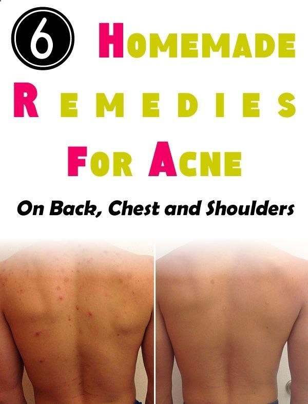how to clear chest acne