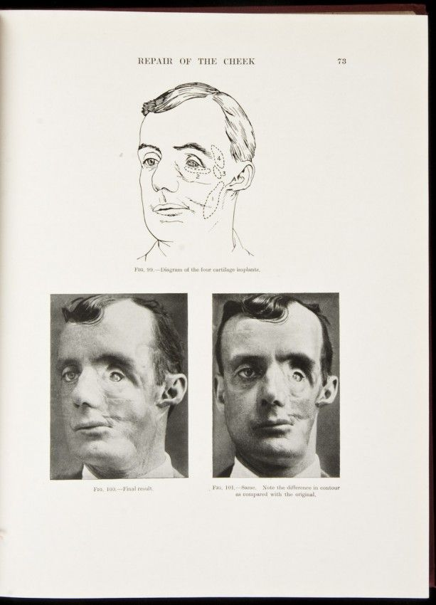 Plastic surgery of the face based on selected cases of war injuries of the face including burns, with original illustrations - Sir Harold Gillies (1920)