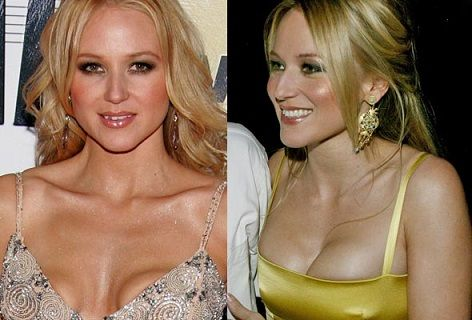 Young Breast Augmentation Before And After Jewel Plastic S...