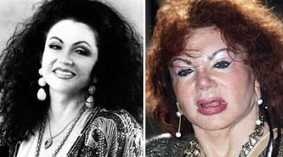 WORST COSMETIC OR PLASTIC SURGERY DISASTERS: Jackie Stallone: facelift, brow lift, cheek implants, nose job and more...