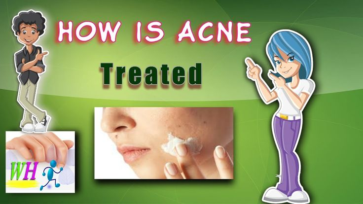 How Is Acne Treated,get rid of acne scars, natural acne treatment
