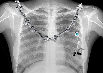 Wolf lapel pin on x-ray chest