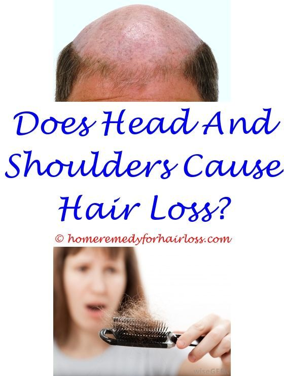 Hair Loss Hypothyroidism Hair Loss Why Can Lupus Cause Pubic Hair