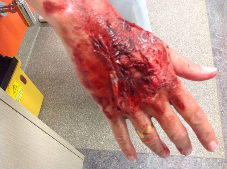 Hand Burn Created Latex Vaseline Makeup