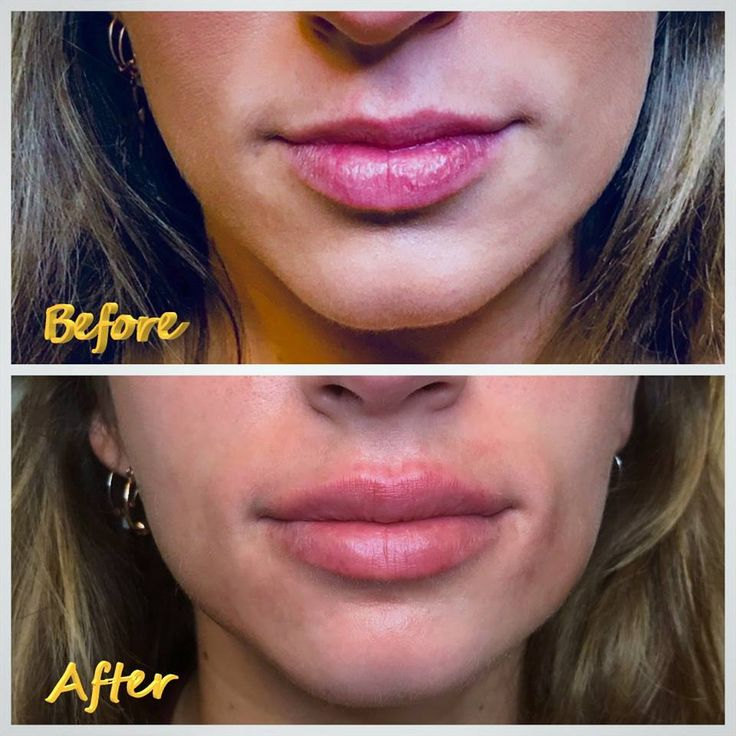 Are You Getting The Botox Lip Flip? If You Want A Super