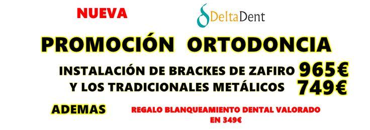 Nueva oferta de Ortodoncia en Madrid :  Os presentamos nuestra promoción, mantenemos los precios pero añadimos un regalo al finalizar el tratamiento de ortodoncia , un blanqueamiento dental gratis valorado en 349€.  Infórmate o pide una primera cita totalmente gratuita , llama ahora 914572547