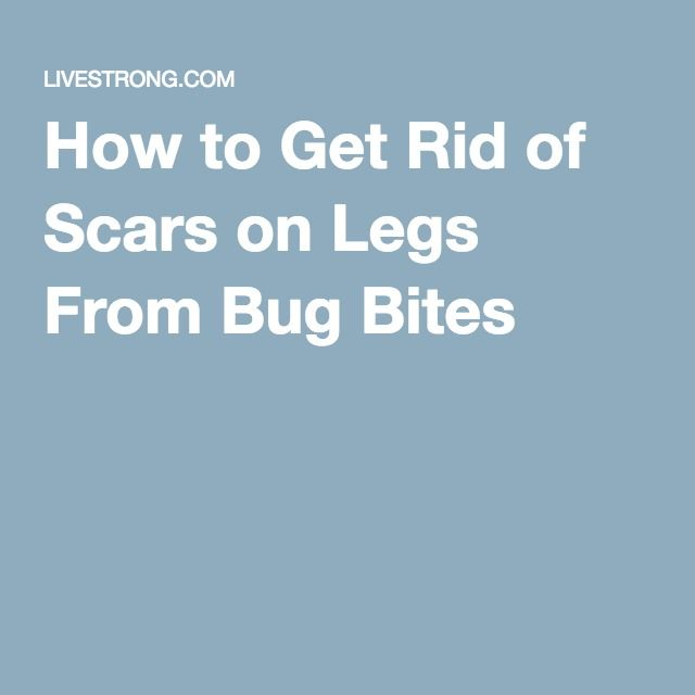 How to Get Rid of Scars on Legs From Bug Bites