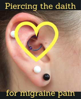 Are there benefits to a daith piercing for migraines? Acupuncture & daith piercing for migraines & more are hot topics. We wanted to see what else is ou