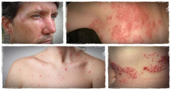 Shingles Treatment: 19 Home Remedies for Shingles Pain Relief