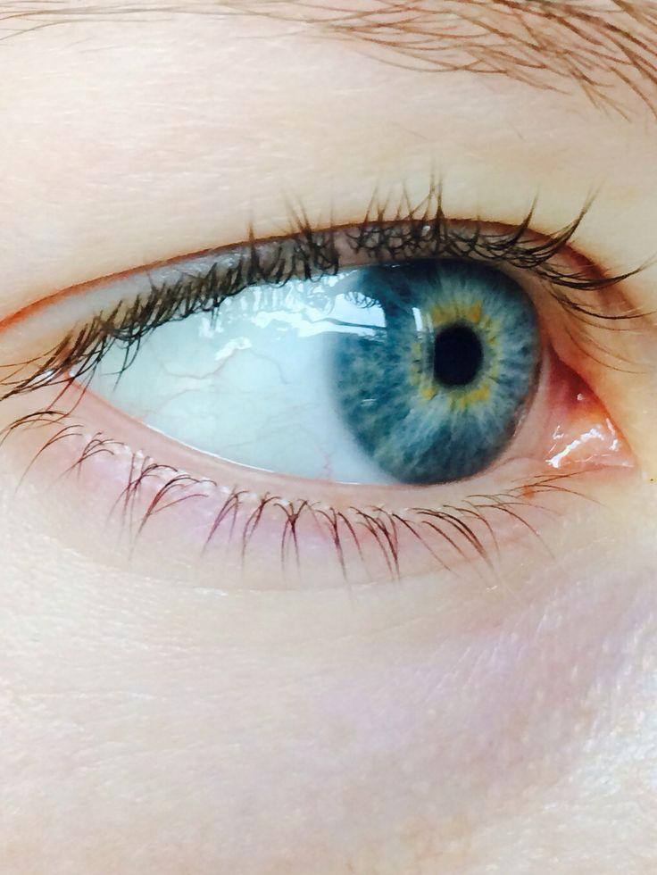 Blue eye with gold/yellow ring around iris. | Beautiful ...