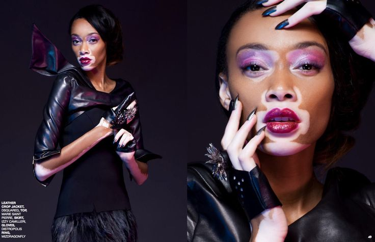 Dressing supermodel Winnie Harlow for Nord Magazine was a pleasure. She is an inspiring young women, and a great role model for our daughters https://nordmagazine.com/2015/12/17/winnie-harlow-jonathan-hooper/?utm_content=buffer79cd3&utm_medium=social&utm_source=pinterest.com&utm_campaign=buffer