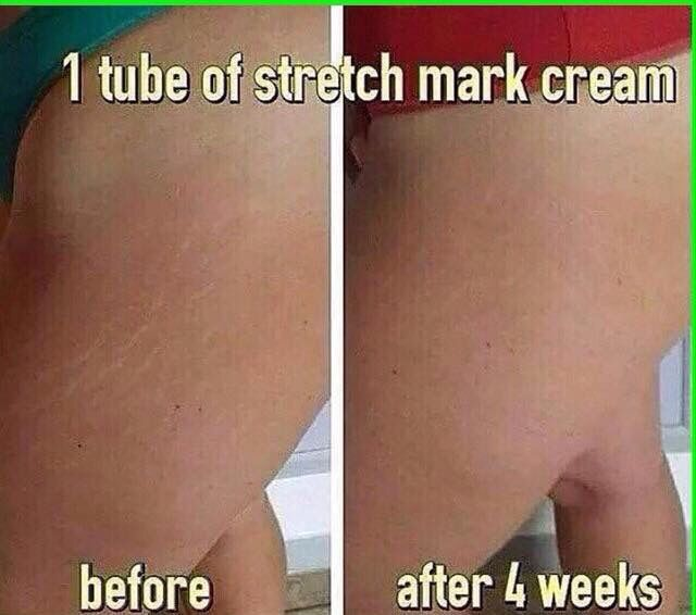 Do you have white stretch marks that have faded but won't completely go away?  I have a product for those too!!!  I am so excited to be able to get rid of those stretch marks and to be able to help others do the same makes me ecstatic!!!  Message me or leave your email below to find out how you can get this product at my cost!!!  That's almost half off!!!!