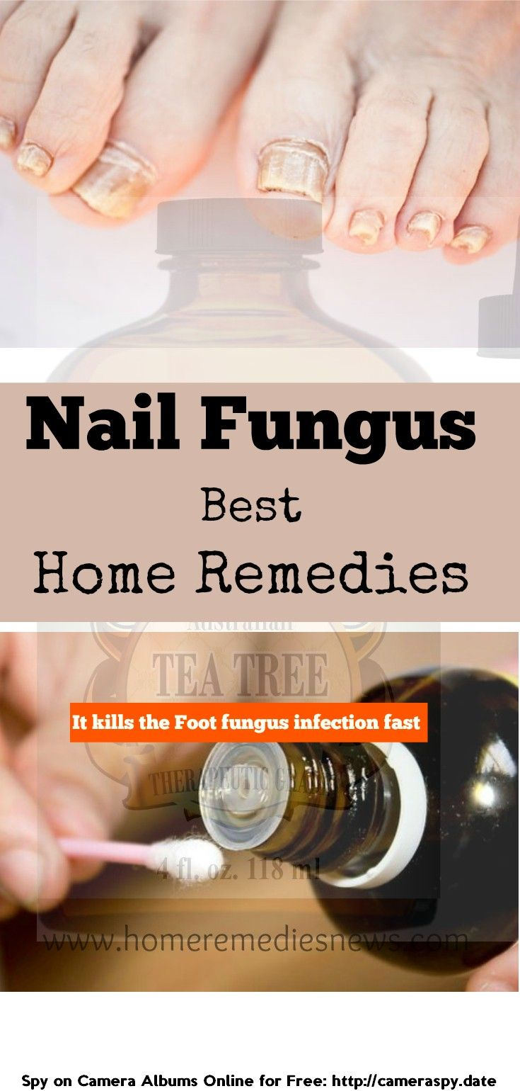 The best folk remedies for nail fungus on the legs 95