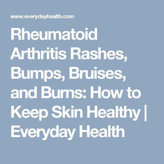 Rheumatoid Arthritis Rashes, Bumps, Bruises, and Burns: How to Keep Skin Healthy | Everyday Health