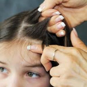 Head Lice Treatment With Tea Tree Oil- mix with veggie oil, coat and leave in for 3 hrs. Use nit comb dipped in vinegar to help detach nits. Shampoo.