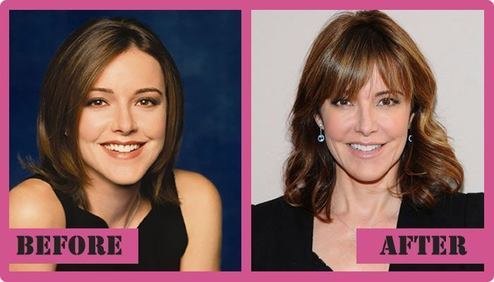 #Christa #MILLER #plastic #surgery Christa Miller Plastic Surgery Before And Aft…