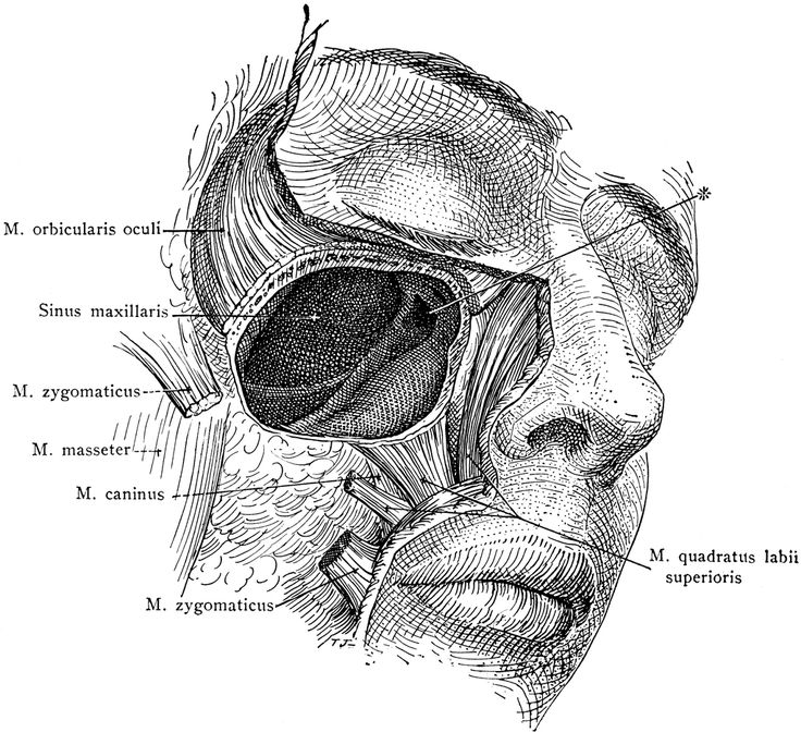 Dissection of the Maxillary Sinus