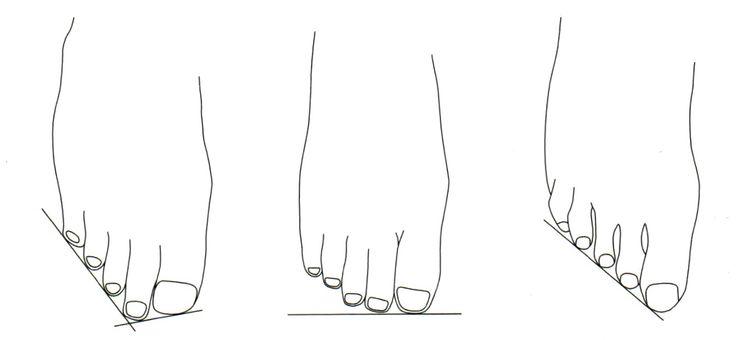 Tipos de pie atendiendo a la formula digital. • Griego. • Cuadrado. • Egipcio.