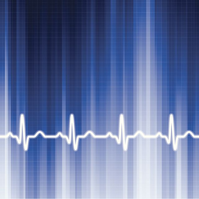 Inappropriate Sinus Tachycardia (IST) Causes and Treatment