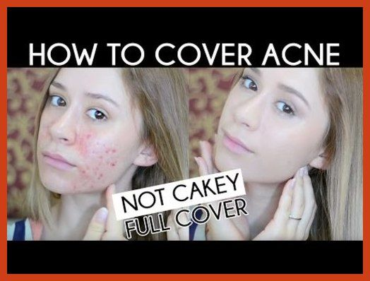 Homemade Acne Treatment - Acne Laser Treatment For You Skin's New Look * Learn more by visiting the image link. #ProactiveAcne