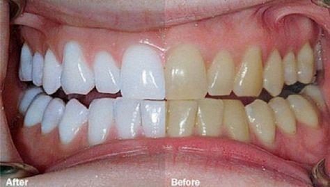 Il mélange 2 ingrédients et les met sur ses dents. Résultats incroyables !