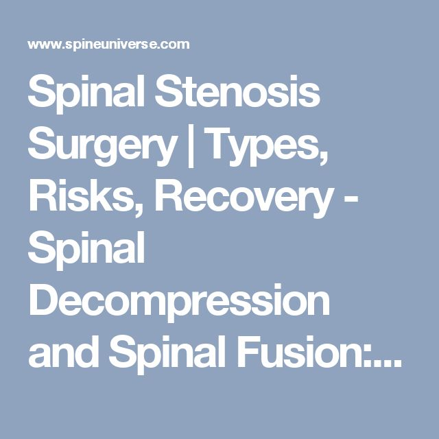 Spinal Stenosis Surgery | Types, Risks, Recovery - Spinal Decompression and Spinal Fusion: Will You Need Surgery for Spinal Stenosis