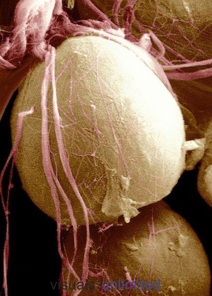 Adipose (fat) cell (SEM)