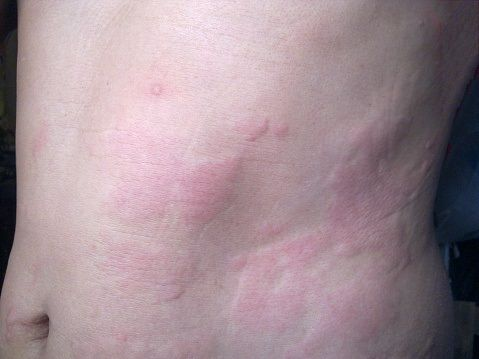 Urticaria is the medical term for hives -- itchy, circular welts on the skin. Hives can appear on the face, torso, or limbs, and can range in size -- up to several inches in diameter. When the cause is unknown, the condition is referred to as idiopathic. Chronic idiopathic urticaria (CIU) refers to hives, of an unknown origin, that appear daily or continue to occur for months or years.
