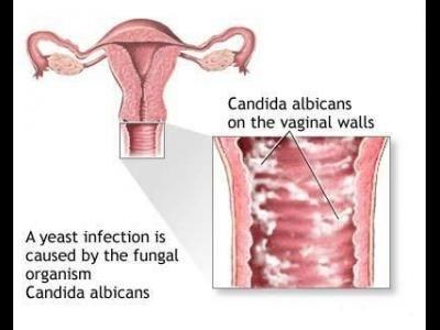 Candida este un fungus care face parte din familia drojdiilor si exista in mod normal  http://www.medpont.ro/ginecologie/candida/