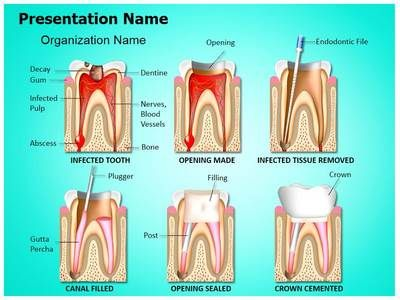 33 best dental powerpoint templates & backgrounds images on, Powerpoint templates