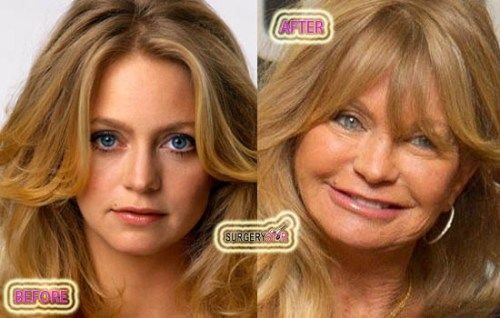 Effects Of Bad Plastic Surgery In The Left Picture We