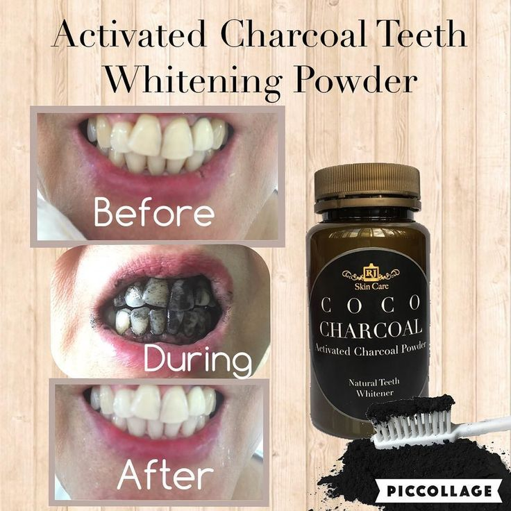 Satisfied Client of our Activated Charcoal teeth whitening powder. #activatedcharcoal #teethwhitening #rjskincare by rjskincare Our Teeth Whitening Page: http://www.myimagedental.com/services/cosmetic-dentistry/teeth-whitening/ Other Cosmetic Dentistry services we offer: http://www.myimagedental.com/services/cosmetic-dentistry Google My Business: https://plus.google.com/ImageDentalStockton/about Our Yelp Page: http://www.yelp.com/biz/image-dental-stockton-3 Our Facebook Page…
