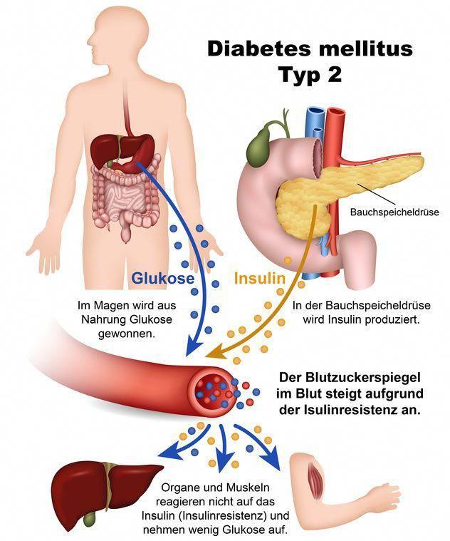 Diabetes Mellitus Ist Ein Uberbegriff Fur Verschiedene Storungen Im Zuckerhaushalt Diabetes Mellitus Ist Ein Uberbe Diabetes Diabetes Symptome Anatomie Lernen