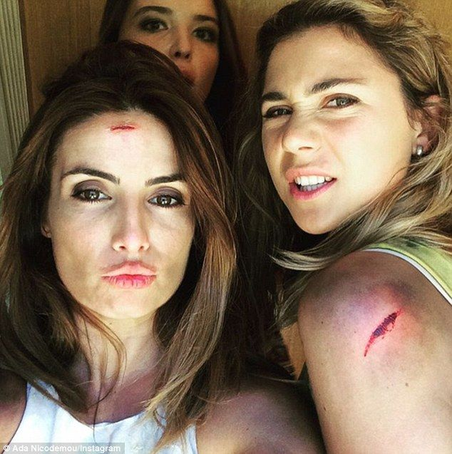 Bloody end: Home And Away's Ada Nicodemou (L) has shared a photo of herself covered in bloody cuts after being involved in a plane crash in the show's pre-Olympic cliff-hanger