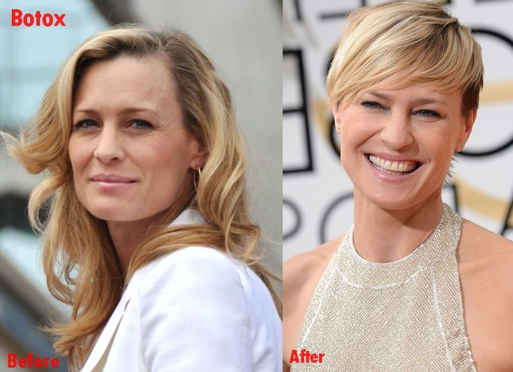 Robin Wright face plastic surgery before and after botox photos..