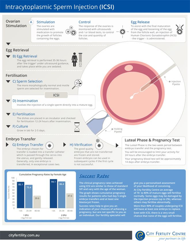 ICSI-IVF City Fertility Centre's step by step guide to Intracytoplasmic Sperm Injection (ICSI)