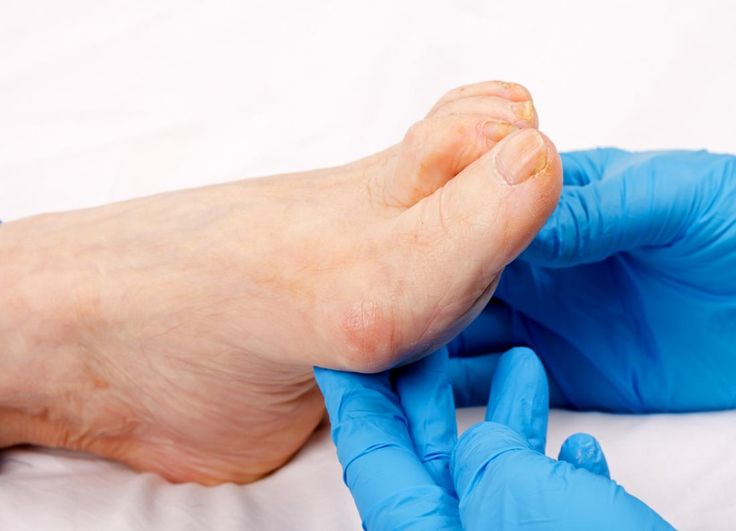 Thick toenails. Causes and treatment.