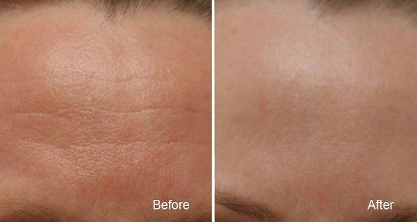 If you have problem with wrinkles you are at the right place. This natural remedy that we offer in today's article will will help fight [...]