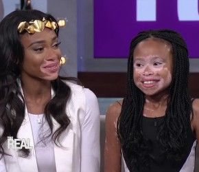 Previous Article Next Article Winnie Harlow Gives a Fan Advice on Growing Up With Vitiligo – Written by: Nikki Kouture Chantelle Brown Young better known as Winnie Harlow or Chantelle Winnie is a 21 year old Canadian model who has vitiligo, a skin disease that causes pigment to disappear...