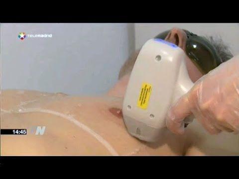 Depilación láser diodo Soprano A | Precio oferta 35€/sesión