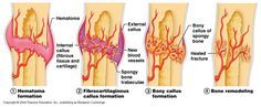 How to Speed up Bone Fracture Healing The body's self-restoration of bone fracture is instant and does not require direction from us. However, what we do during the healing process significantly af...