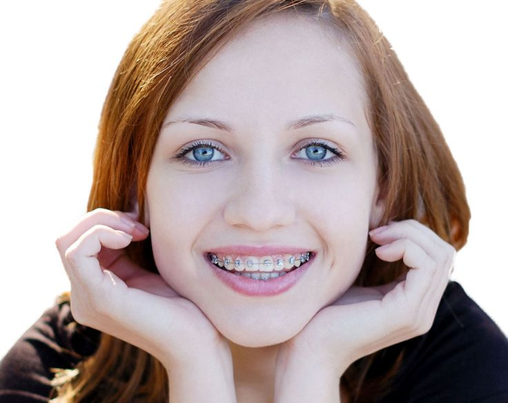 Dental braces used in orthodontics that align and straighten teeth and help to position them with regard to a person's bite, while also working to improve dental health. Call at +91 80 23011500 +91 94835 23368  http://confidentdentalcare.in/php/orthodontic-dental-braces.php  #dentalbraces #Orthodontistclinic #Orthodontics #OrthodontistclinicBangalore