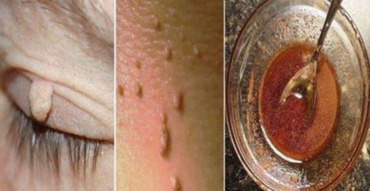 Anuncio  Elimina verrugas en la piel o los fibromas son un problema estético para quienes lo padecen.Generalmente las verrugas o los fibromas aparecen en lugares como las axilas, el cuello, la ingle, o debajo de los senos, en el vientre o en los párpados. No se han establecido de forma definitiva las causas por las cuales aparecen este tipo de afecciones, pero se ha tenido como dato importante que podrian ser problemas que derivan de la genética de cada persona, además del tipo de piel…