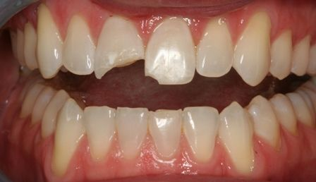 Cosmetic and Emergency Dental Treatment Restores Smile After ...